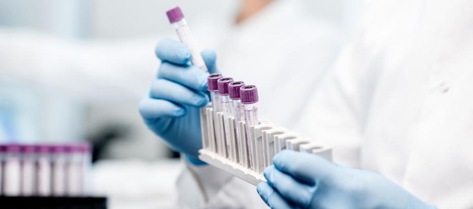 Aandeel Novacyt beleggen coronavirus - koers novacyt